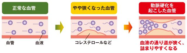 血管のつまり