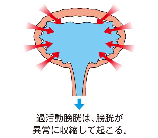 過活動膀胱