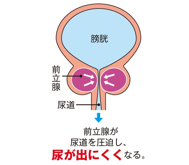 前立腺肥大